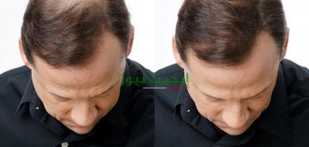 أسرع الطرق الطبيعية لعلاج الصلع وتساقط الشعر